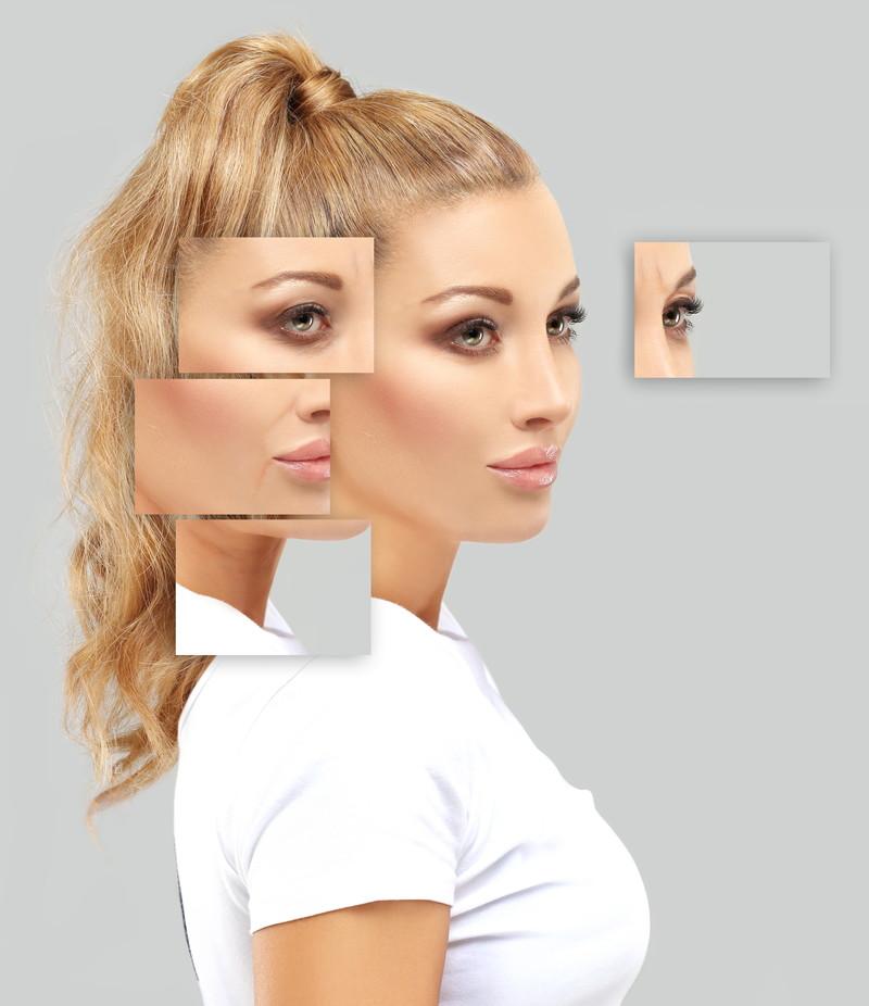 美容医療で顔整形